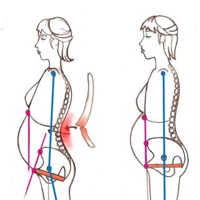 Chiropractic During Pregnancy